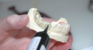 Sparen beim Zahnersatz – die Härtefallregelung